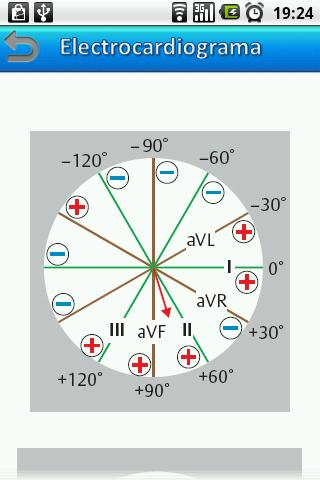 Electrocardiograma - screenshot