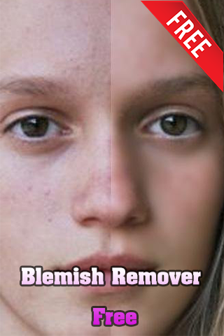 Blemish Remover Free
