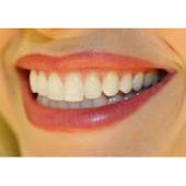 PSL Dentist
