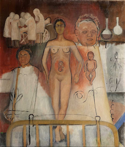 Frida and the Cesarean (unfinished)