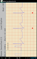 Screenshot of T-ECG User Telephonic ECG