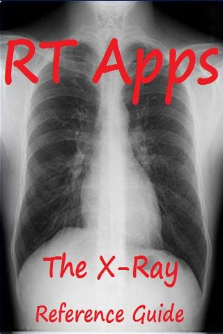 X-Ray Positions