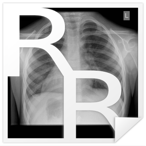 Radiology Cases: Chest LOGO-APP點子
