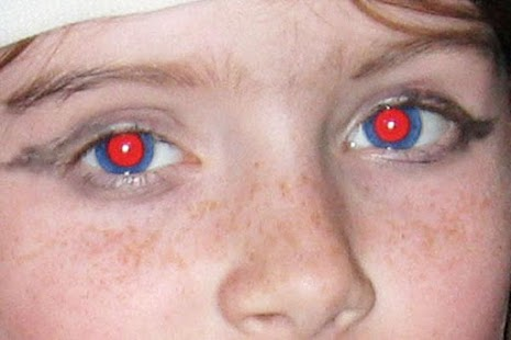 Edit Red Eye Photo