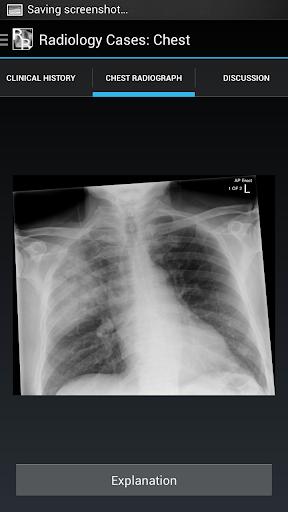 【免費醫療App】Radiology Cases: Chest-APP點子
