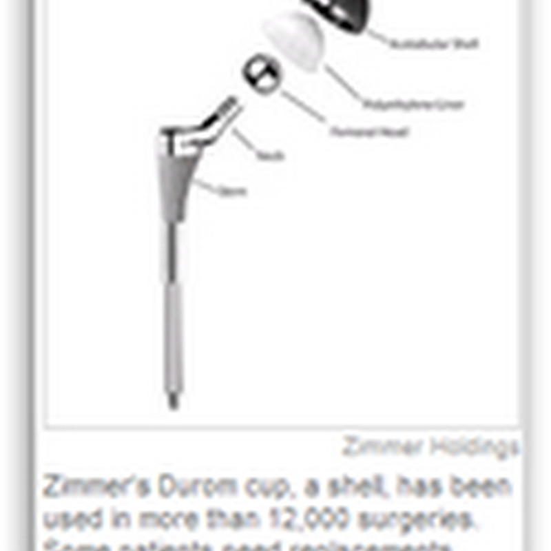 Complaints Undermine Hip Device – Zimmer Hip