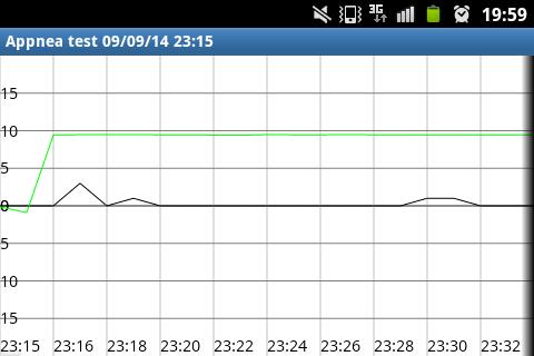 【免費健康App】AppNea - Apnea Detector-APP點子