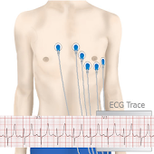 Basic ECG Interpretation