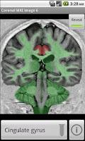 Screenshot of NeuroSlice