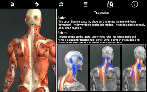 Muscle Trigger Point Anatomy - screenshot thumbnail