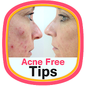 Acne Free Tips