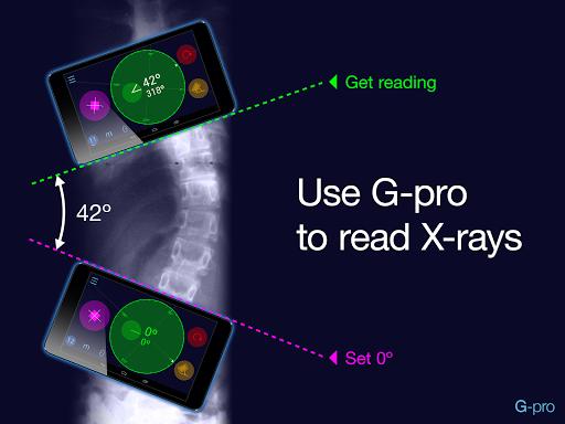免費下載醫療APP|Goniometer Pro (trial version) app開箱文|APP開箱王