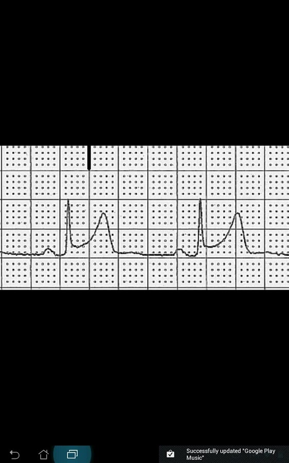 ECG Challenge- screenshot