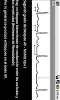 Screenshot of Electrocardiograma ECG Tipos