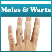 Moles and Warts Removal