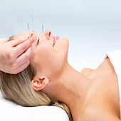 Dos And Donts Of Acupuncture