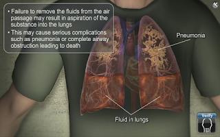 Screenshot of Medrills: Airway Suctioning
