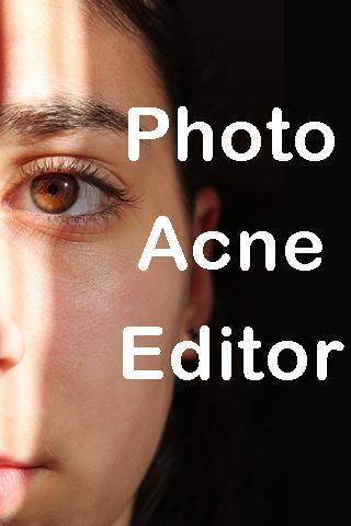Photo Acne Editor