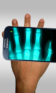 Xray Scanner Prank- screenshot thumbnail