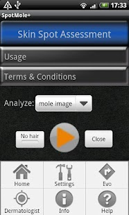 SpotMolePlus - screenshot thumbnail