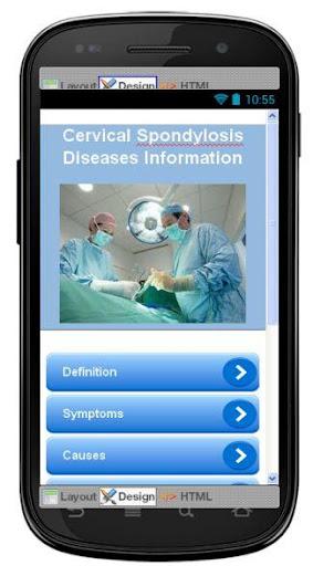 Cervical Spondylosis Disease