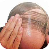 Hair Fall Men