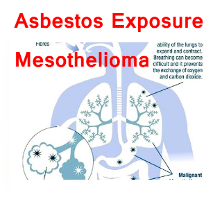 Asbestos Exposure Mesothelioma