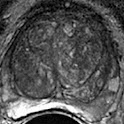 PI-RADS Prostate MRI icon