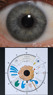 Eye Diagnosis- screenshot thumbnail