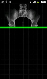 X-Ray Testicles Scanner - screenshot thumbnail