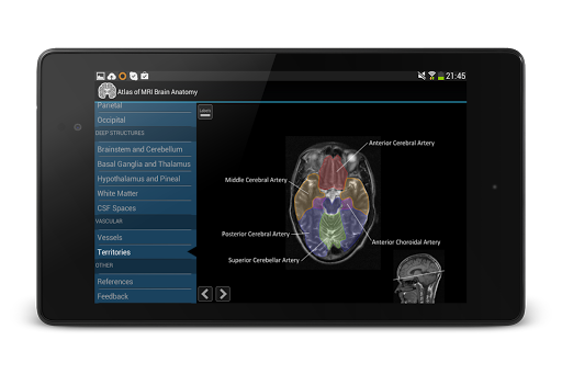 玩免費醫療APP|下載Atlas of MRI Brain Anatomy app不用錢|硬是要APP