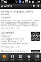 Screenshot of RadGray