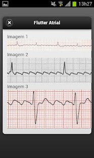 ECG Lite - screenshot thumbnail
