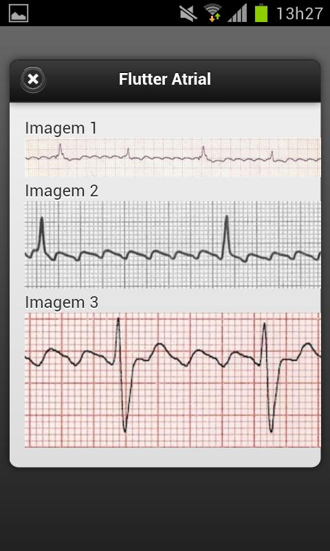 ECG Lite - screenshot