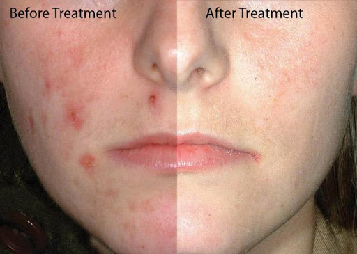 Acne Treatments Tips