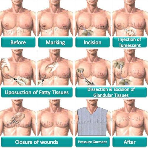 traitement naturel gynécomastie