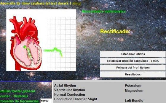 TERAPIA DEL QUANTUM SCIO: CASOS PRÁCTICOS « MEDICINA CUANTICA