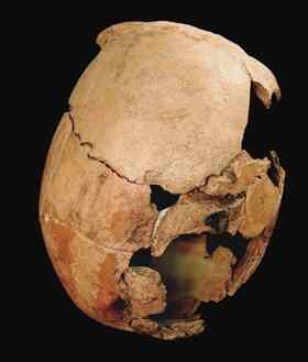 Excavations at an ancient Pueblo site uncovered crushed skulls (one shown) and other bones from at least 35 victims.
