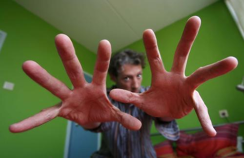 Заикание.News:Лечение заикания экстрасенсами