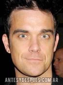 Robbie Williams, 2001