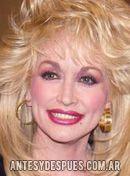 Dolly Parton, 1993