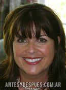 Debbie Turner,