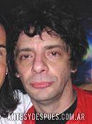 Juanse, 2008