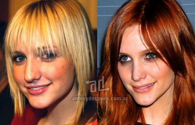 ashlee simpson before surgery