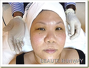 HealthTrends eCo2 Laser Treatment After