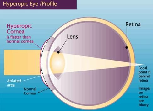 The Farsighted (Hyperopic) Eye