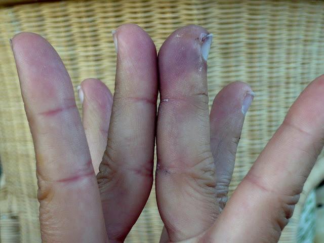 I Broke My Finger Angela Grammatas