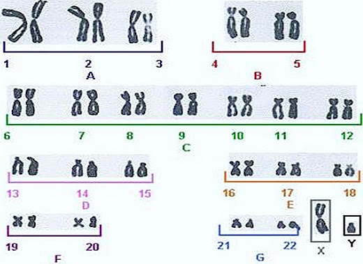 the two sex chromosomes are considered autosomes are in Levy