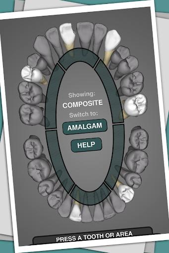 CavSim - Dental Cavity Preps