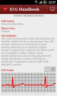 Heart ECG Handbook - Full - screenshot thumbnail